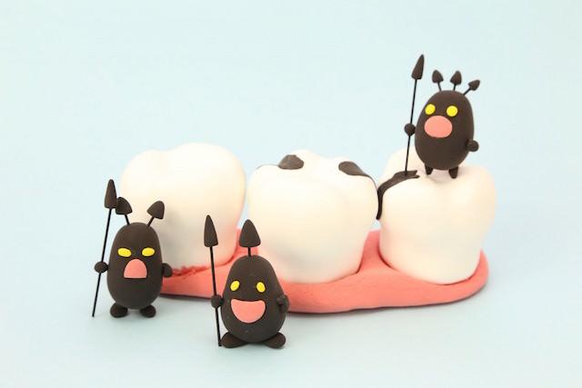 虫歯の写真