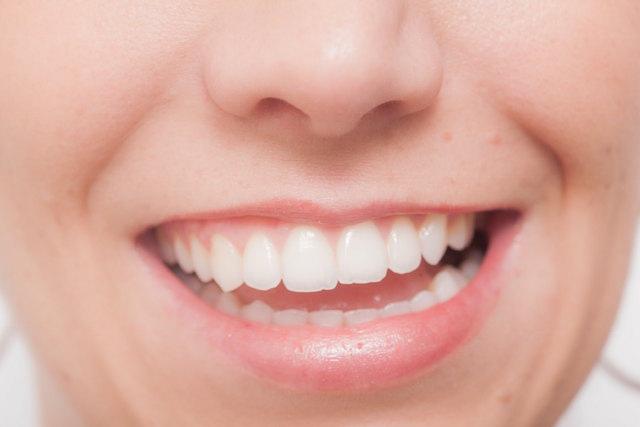 歯並びの美しい女性の写真